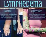 6 Things you Should Know about Breast Cancer that are Rarely Discussed. | Lymphedema