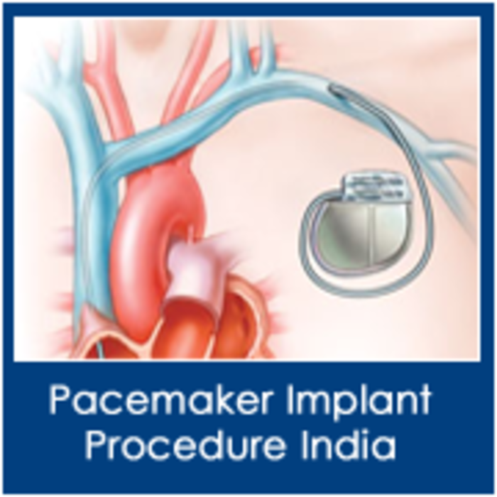 cardiac pacemaker business Cardiac pacemaker market is expected to grow at a cagr over 79% from 2017 to 2023, global cardiac pacemaker industry categorizes the global market by type, technology, application and end user | cardiac pacemaker industry | mrfr.