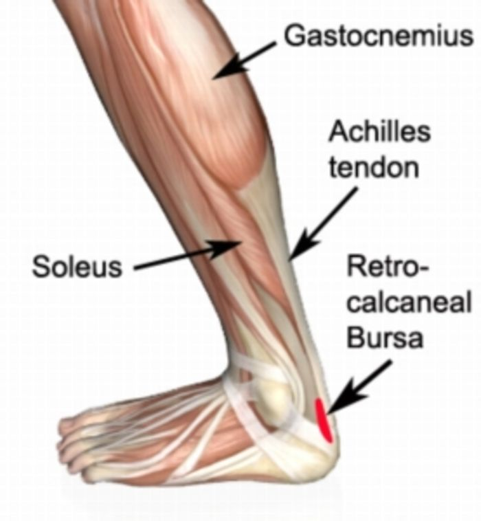 a description of bursitis as a common condition that can cause much pain and swelling around an affe Paininitially, the swelling may not be accompanied by pain, and some people with elbow bursitis never experience any pain however, as the olecranon bursa swells larger and larger it may cause pain or discomfort, particularly during extreme bending or straightening.