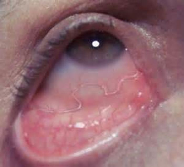 rash around eyes - Dermatology - MedHelp