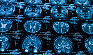 "Litigating a Brain Injury Case: Overcoming the term ""Mild"""