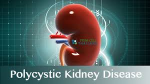 Polycystic Kidney Disease Treatment Reviews and Ratings 2014