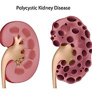 Recommended Polycystic Kidney Disease Treatment Options Reviews 2016 | Treatment Options on Polycystic Kidney Disease 2016