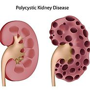 Recommended Polycystic Kidney Disease Treatment Options Reviews 2016 | Top Treatment Options on Polycystic Kidney Disease 2016
