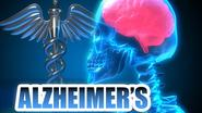 The Facts About Alzheimer's Disease