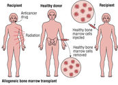 Bone Marrow Transplantation in India