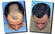 How To Choose Best Hair Transplant In India
