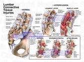 Lumbar Pain: An Overview