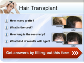 Hair Transplant Services in Pakistan