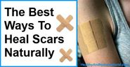 The Best Ways to Heal Scars Naturally