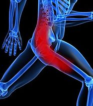 Sciatica Physical Therapy | New Age Physical Therapy