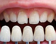 Dental Implants - Beginning of a New Era in Cosmetics Dentistry