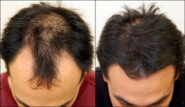 Best Hair Transplant Surgeons In India