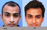 Suffering from Baldness? Get the Best Hair Transplant In India