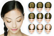 Bountifully Natural Hair With Hair Transplant Surgeons In India