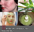 12 Effective Natural Cures for Rosacea - Treat Rosacea Naturally