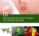 10 Effective Natural Cures for Shingles - Treat Shingles Naturally