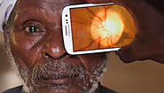Have you got cataracts in your eyes? Find out here