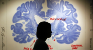 Toward the Treatment of Alzheimer's With Electrical Shocks to the Brain - Atlantic Mobile