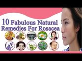 10 Fabulous and Easy Natural Remedies for Rosacea to Clear Skin
