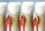 Causes And Treatment Of Gum Disease