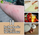 10 Effective and Best Home Remedies for Poison Ivy
