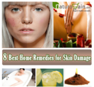 8 Best Home Remedies for Skin Damage to Improve Skin Health