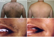 Timelessskincare.co.uk For Permanent Hair Removal In London