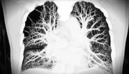 Pulmonary Embolism - St. Louis Medical Malpractice Lawyers
