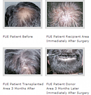 FUE / NeoGrafting / Folicular Unit Extraction