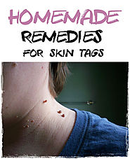 12 Natural Remedies For Skin Tag Removal (Home Remedies)