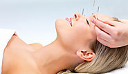 Acupuncture For Acne | Prevention