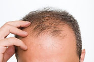 Some Advisable Hair Loss Treatment And Solutions