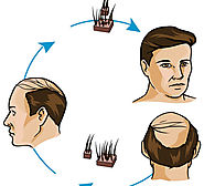 Have Proper Amount of Iron And Get Rid From Hair Loss