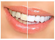Teeth whitening treatment at Harsh Multispeciality Dental Centre