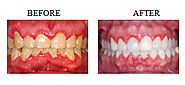 Periodontal Therapy: Bleeding Gums Treatment