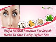 Useful Natural Remedies for Stretch Marks to Give Visibly Lighter Skin