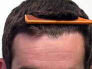 Post Operative Care for FUE Hair Transplant Surgery