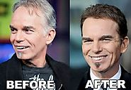 Billy Bob Thornton Hair Transplant
