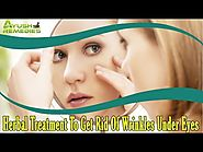 Herbal Treatment To Get Rid Of Wrinkles Under Eyes