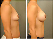 Best Cosmetic Surgeon in Delhi, Plastic Surgeons India