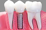Are you in need of denture repairs services in Christchurch?