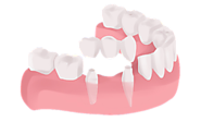 Denture a Long Lasting Replacement of Missing Teeth