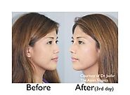 How much does nose reshaping surgery cost - rhinoplasty costs
