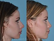Dr. Richard Zoumalan, Best Rhinoplasty Doctor, Revision Rhinoplasty, Facial Plastic Surgeon Costs - Beverly Hills, Lo...
