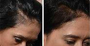 Stem Cell FUE: New Hair Restoration Procedure
