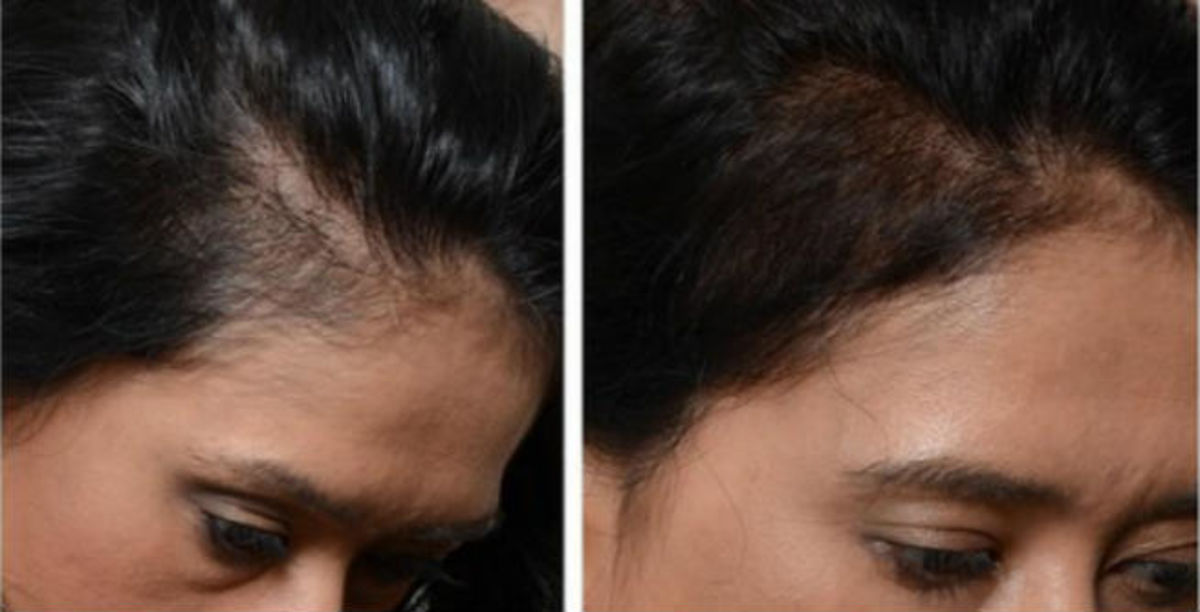 Headline for FUE Hair Transplant