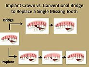 Dental Porcelain Crown and Veneers