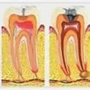 What are the Indications of Root Canal Treatment