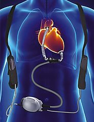 Modern Trends in Heart Surgery